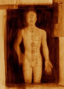 akupunktúra6kicsi
